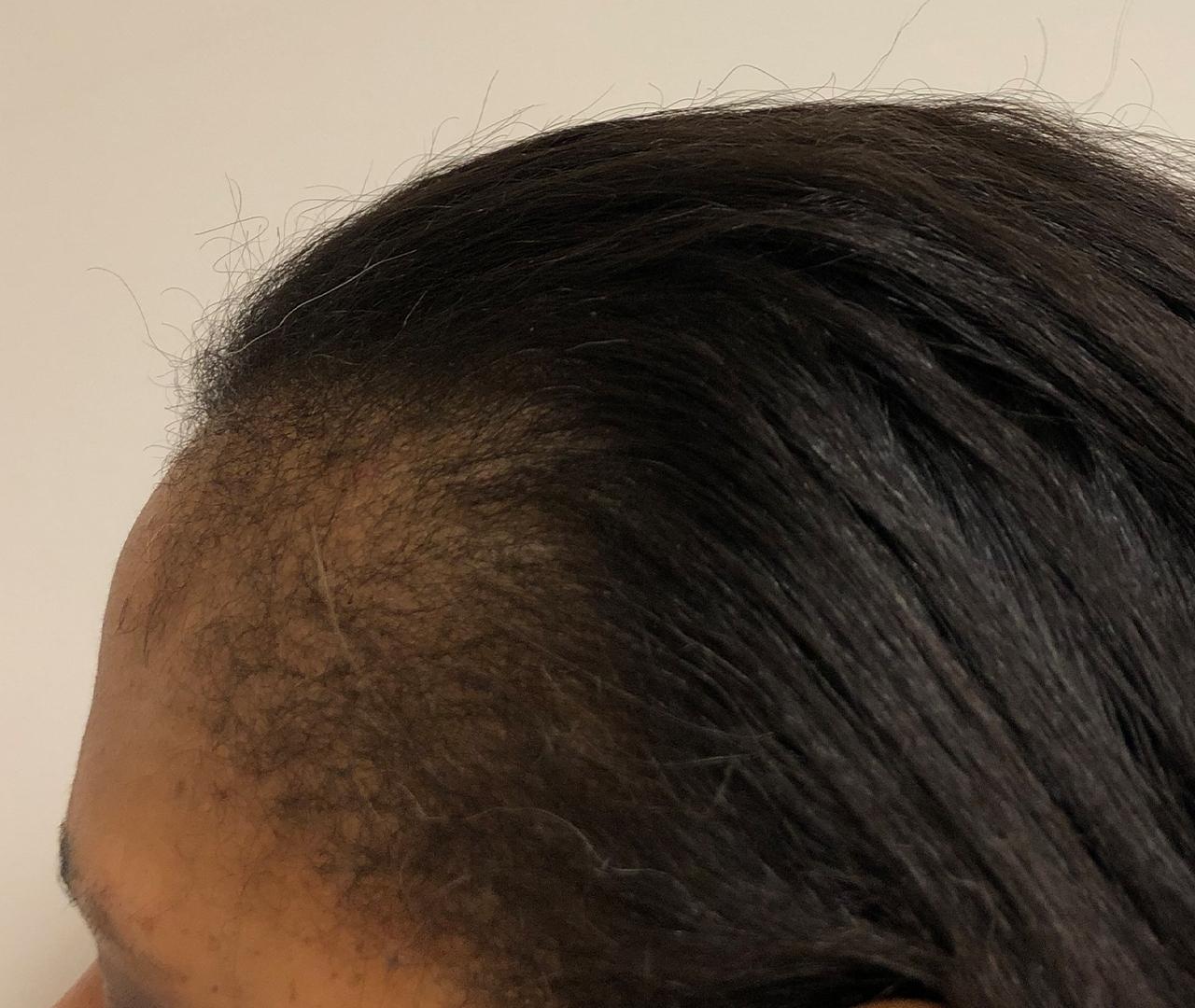 Hair Restoration 9