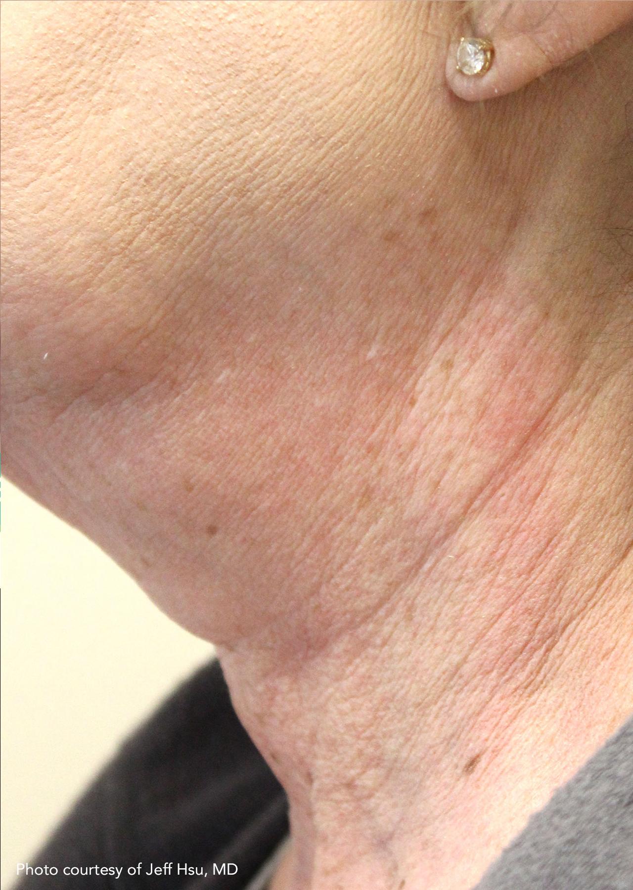 Skin Tightening 16