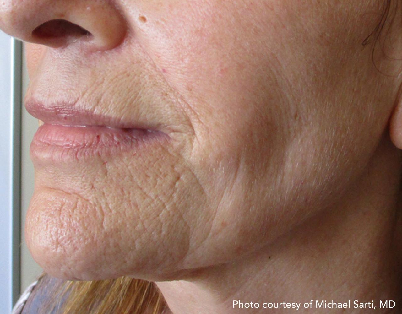 Skin Tightening 19
