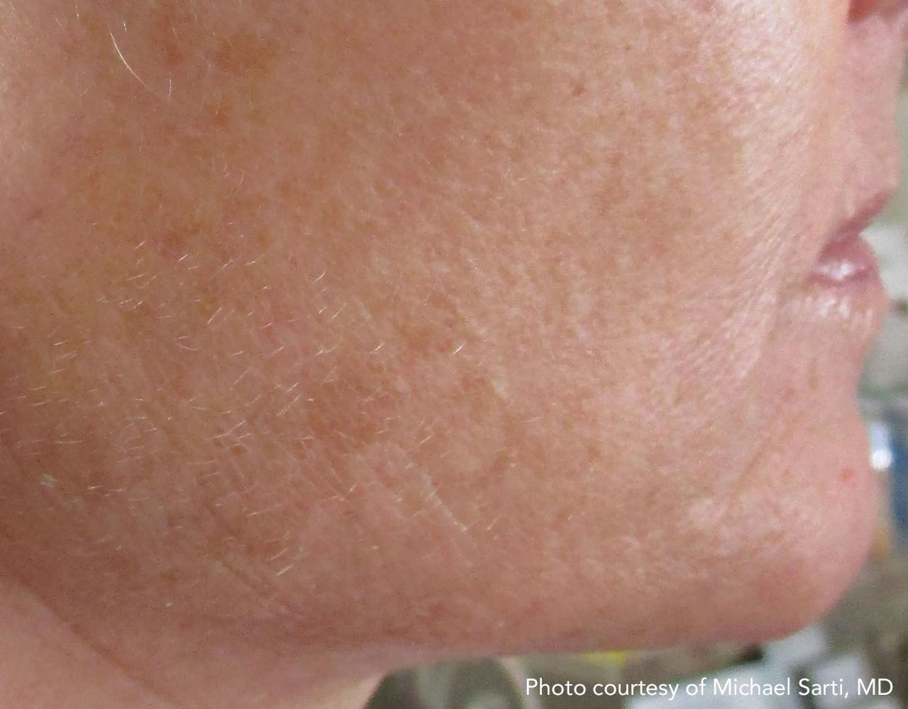 Skin Tightening 20