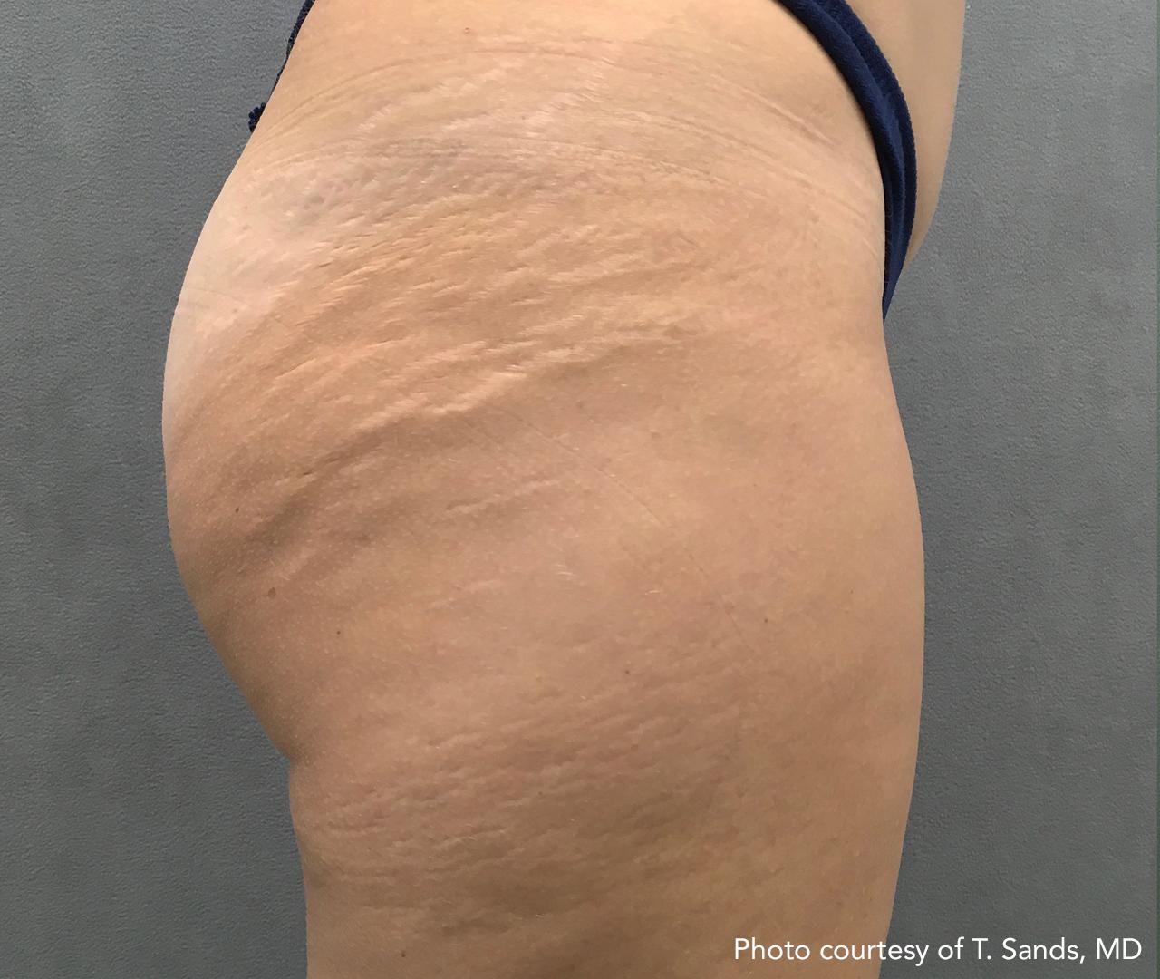 Skin Tightening 24