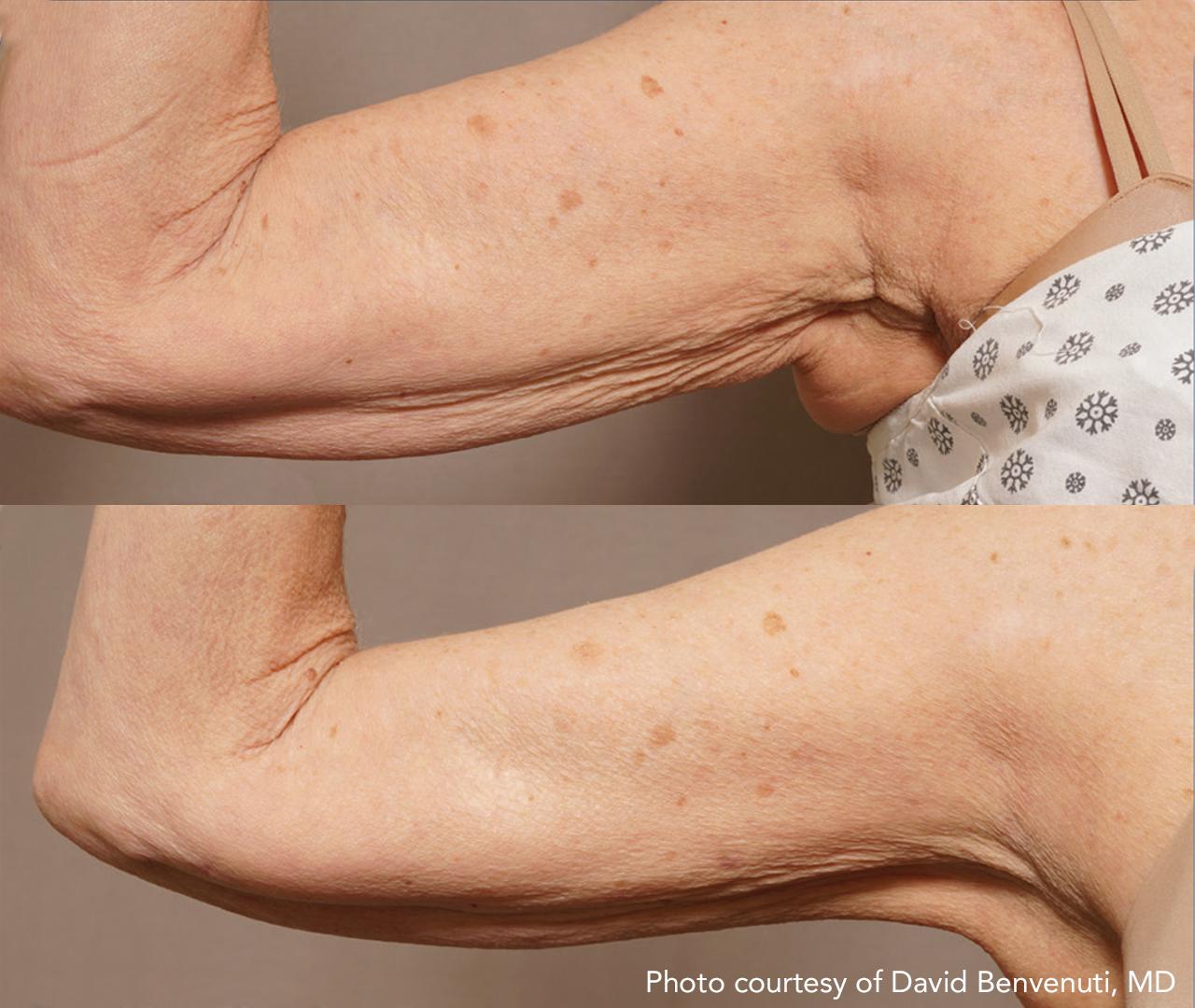 Subdermal Skin Tightening 8