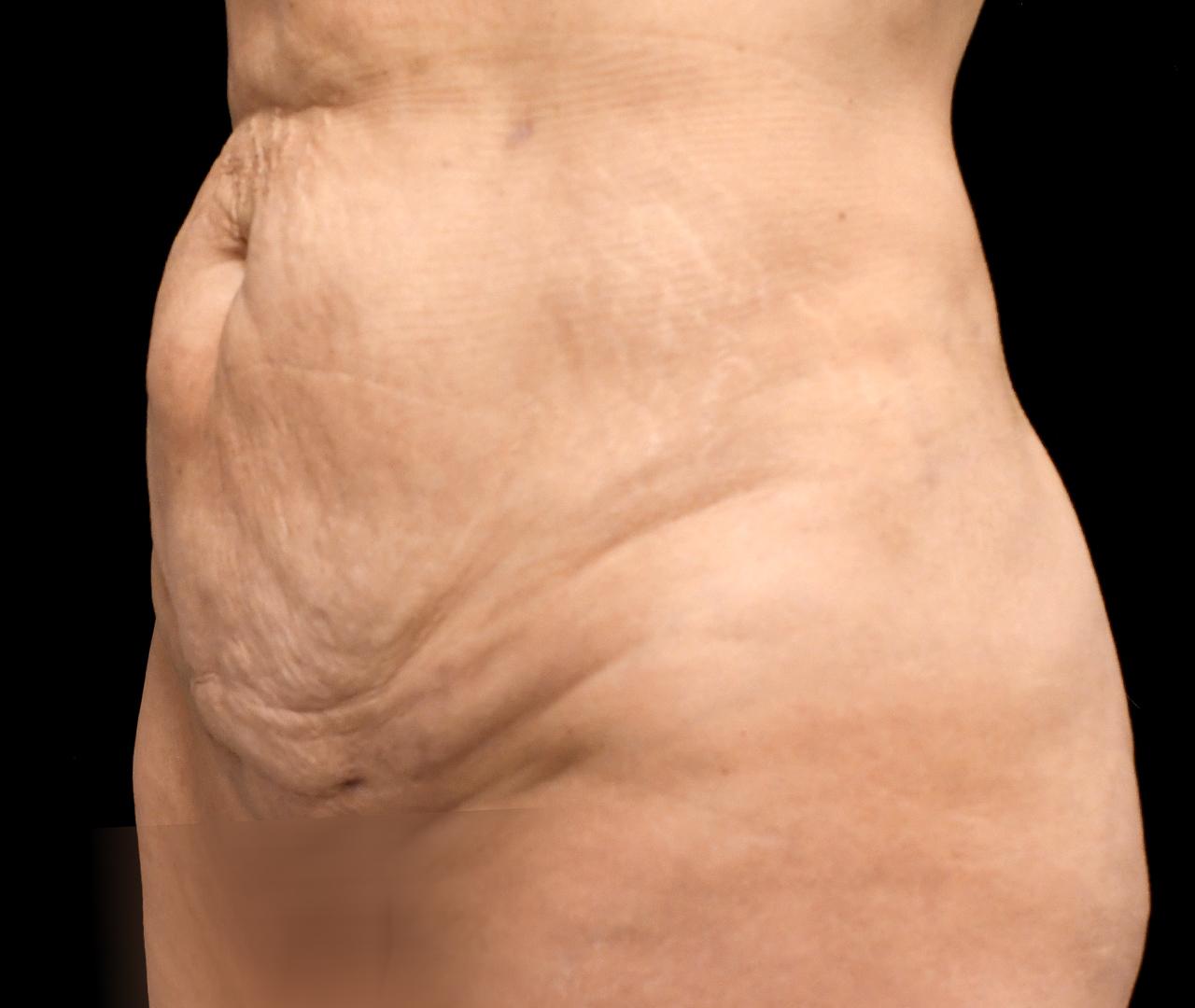 Subdermal Skin Tightening