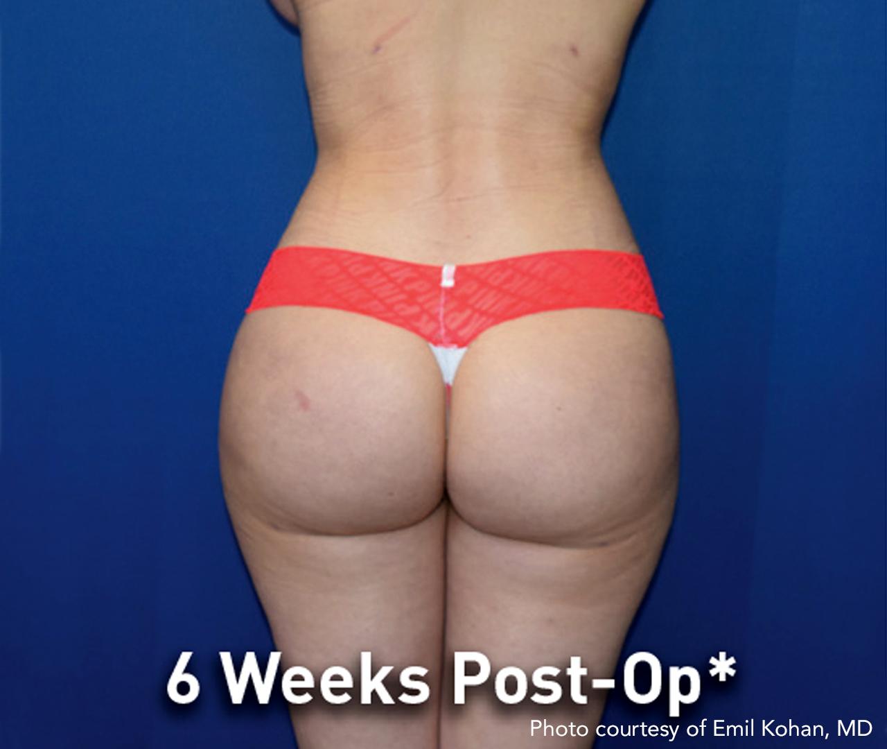 Subdermal Skin Tightening 6