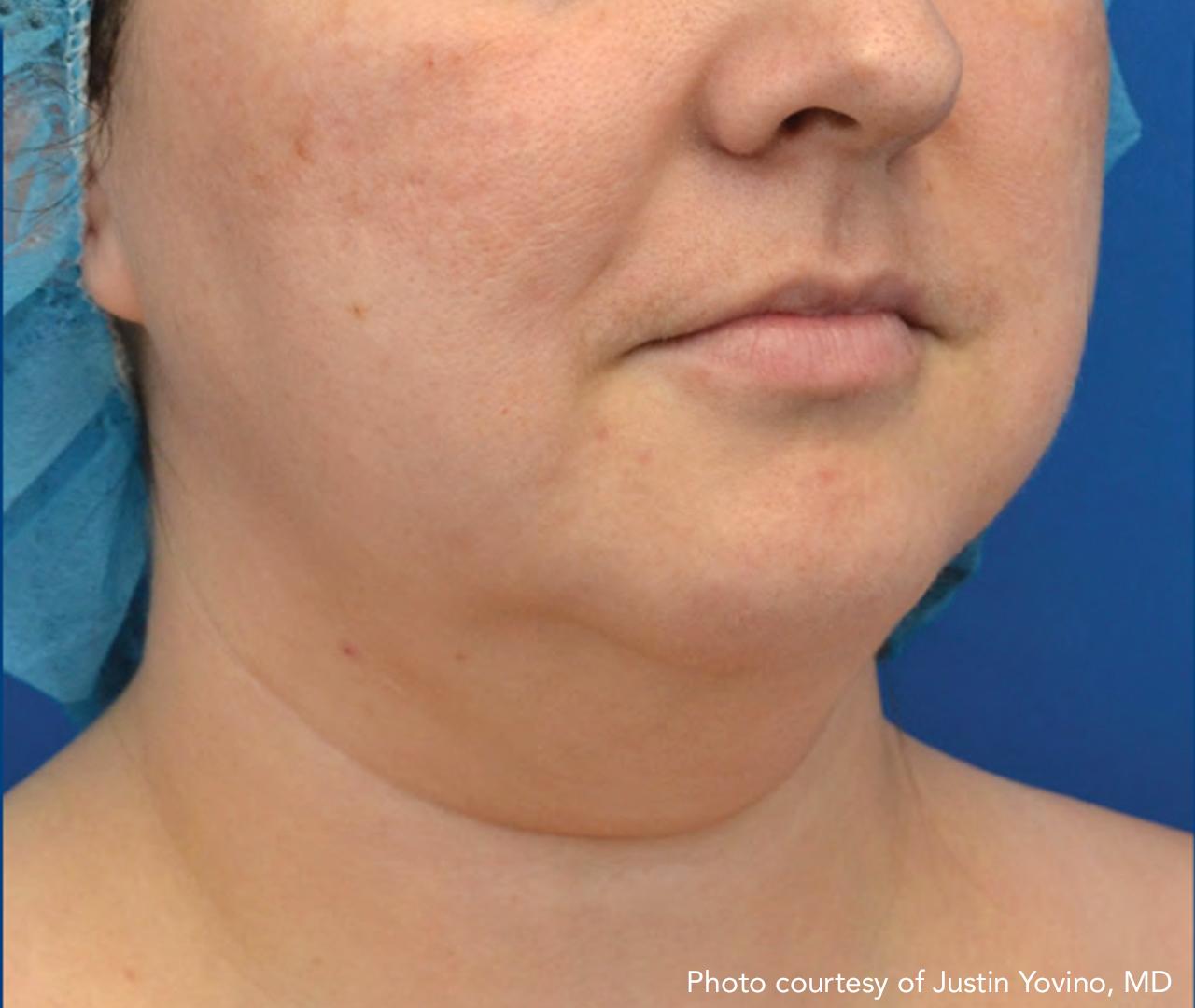 Skin Tightening 10