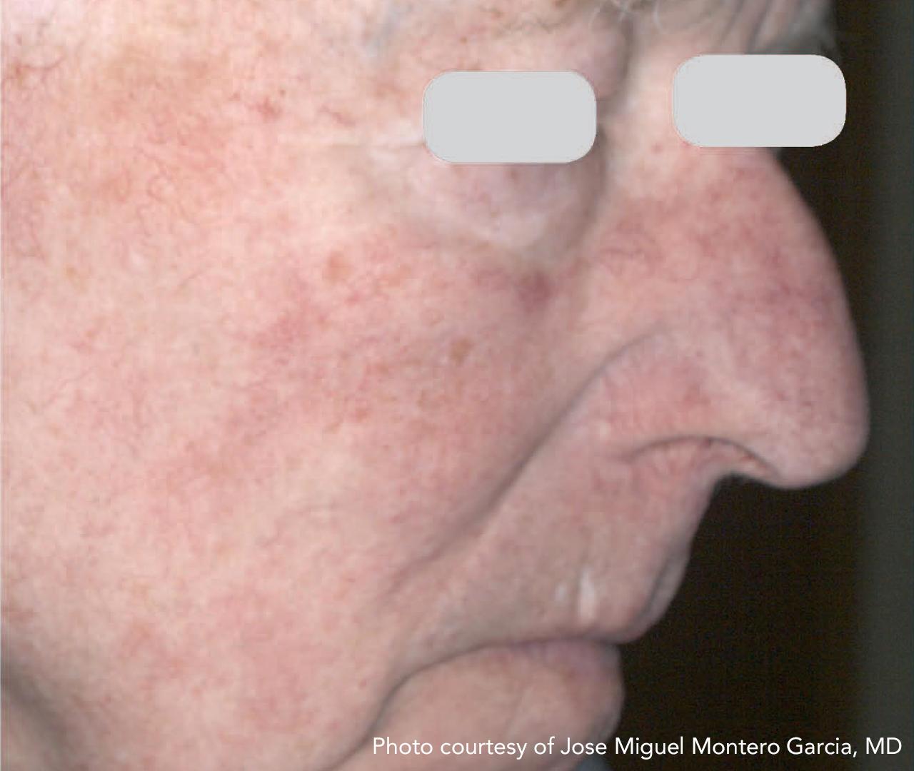 Vascular Lasers for Redness & Veins