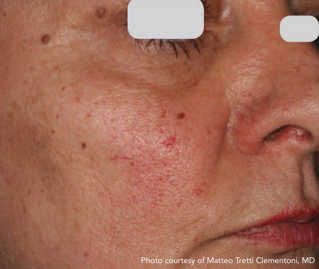 Vascular Lasers for Redness & Veins IPL