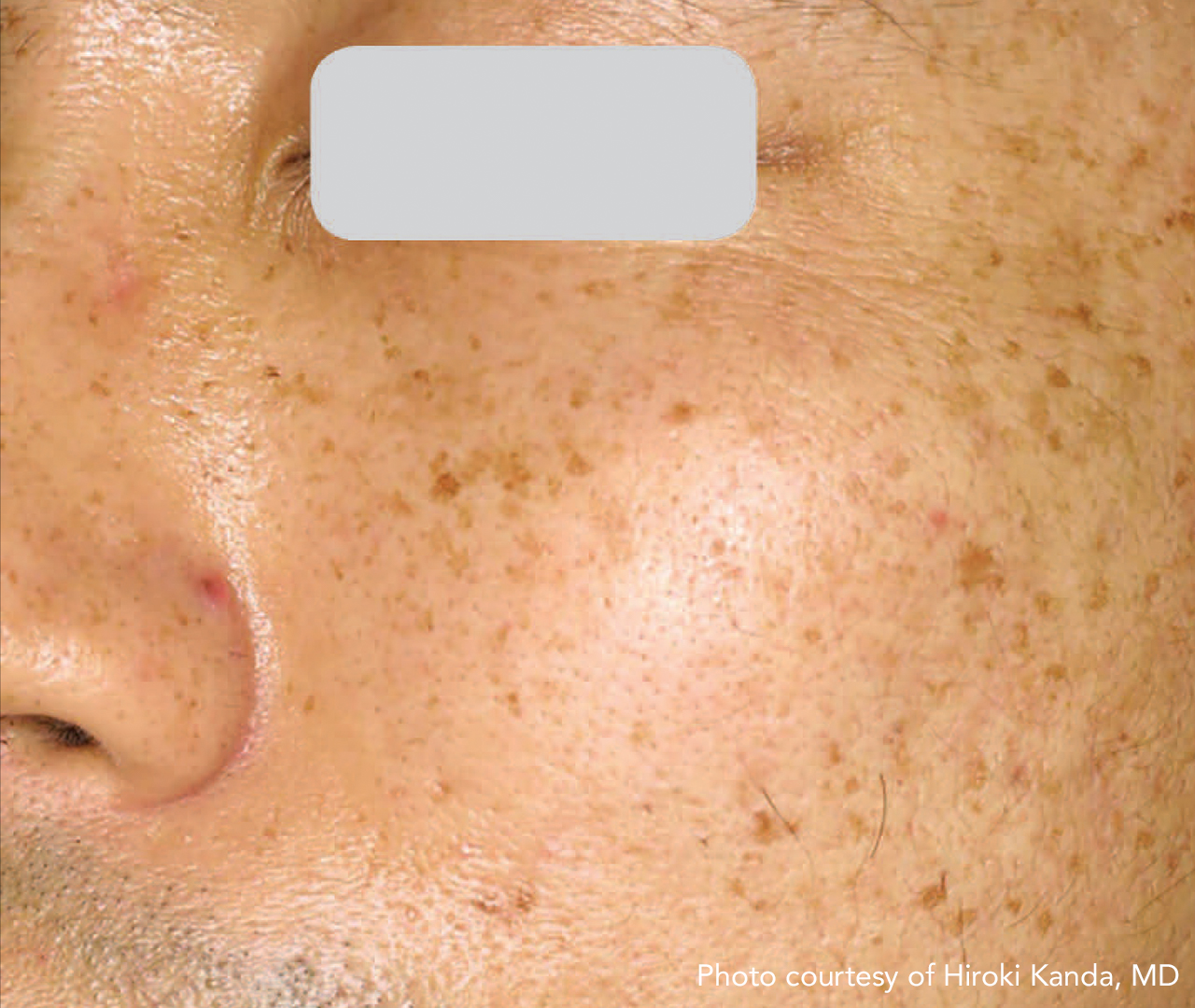 Brown Spot & Discoloration Removal 7