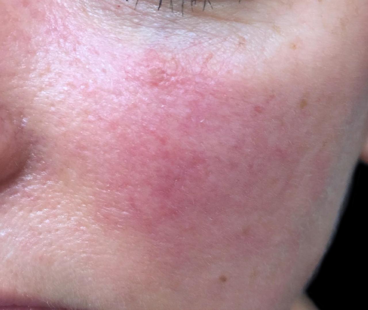 Vascular Lasers for Redness & Veins Vbeam