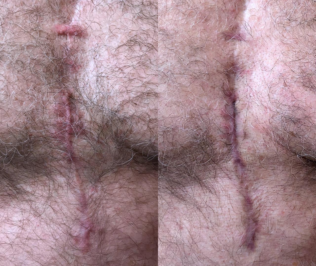 Vascular Lasers for Redness & Veins Vbeam 2