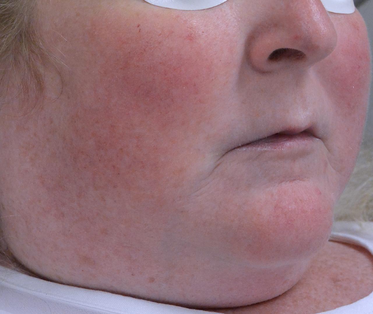 Vascular Lasers for Redness & Veins Vbeam 4