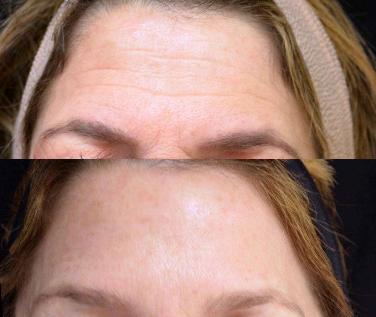 Wrinkle & Line Reduction