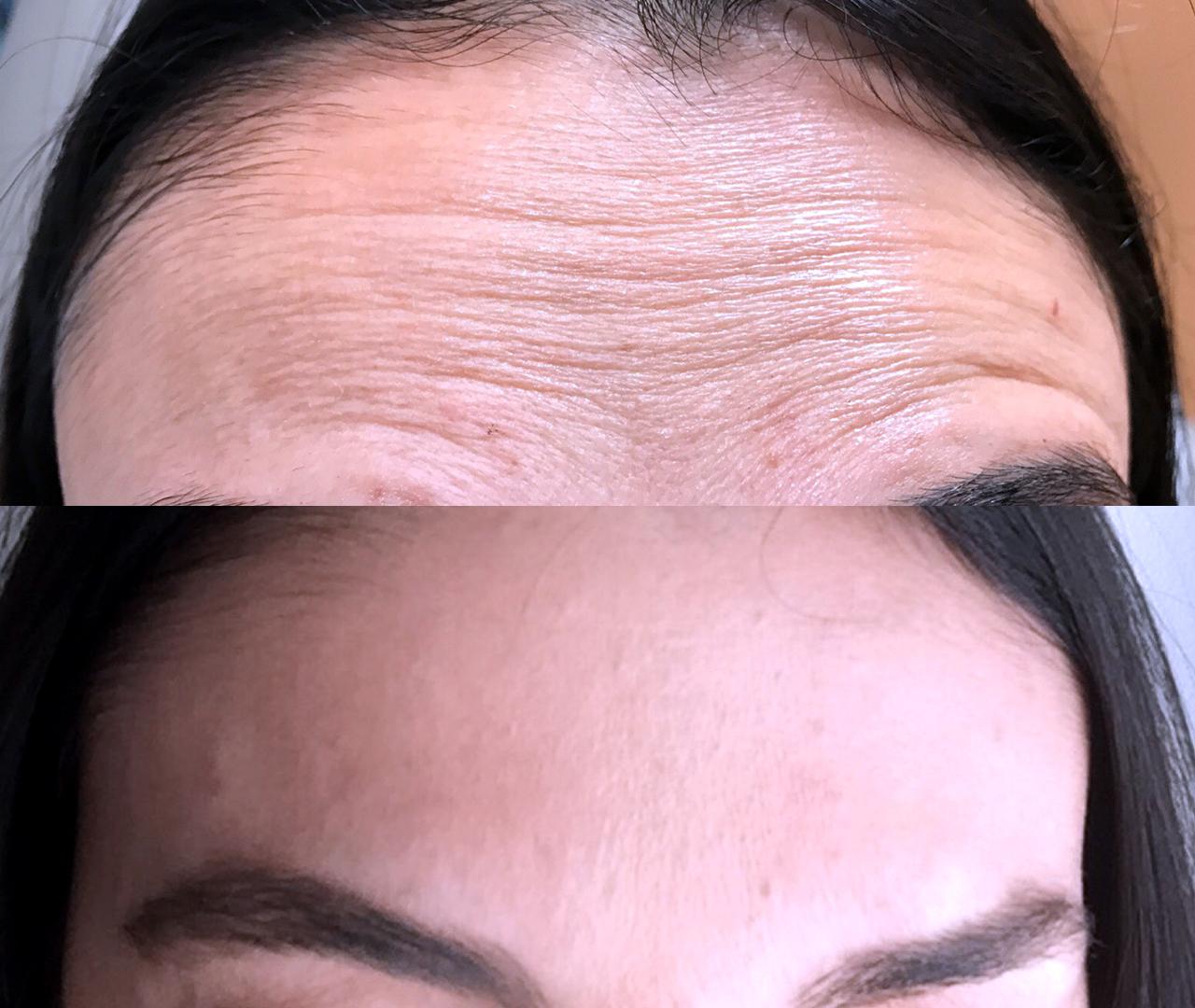 Wrinkle & Line Reduction 4