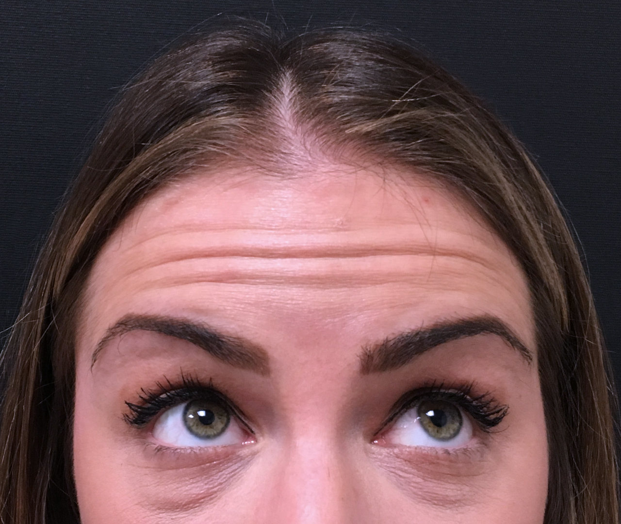 Wrinkle & Line Reduction 12