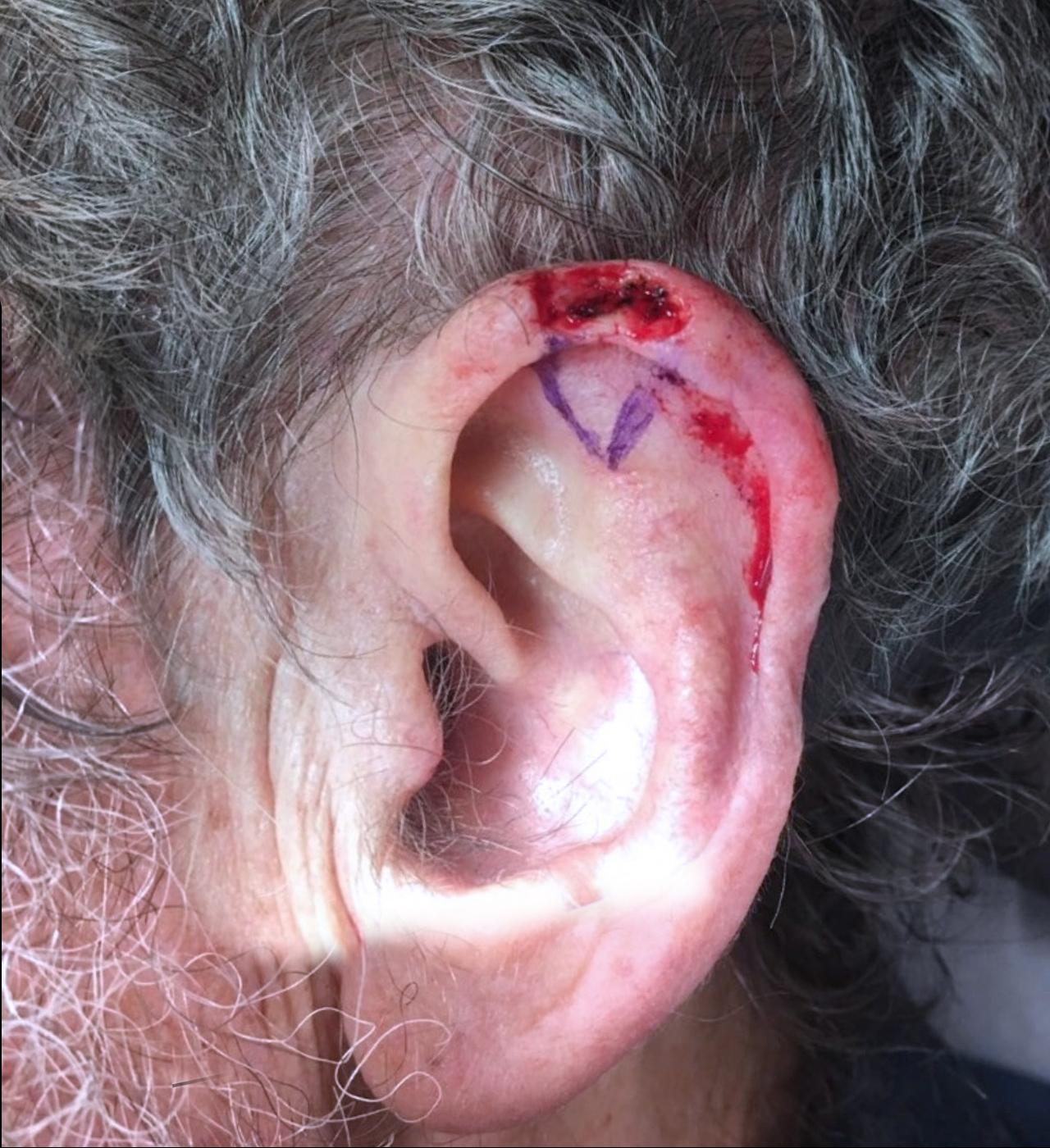 Mohs Surgery Ear 7
