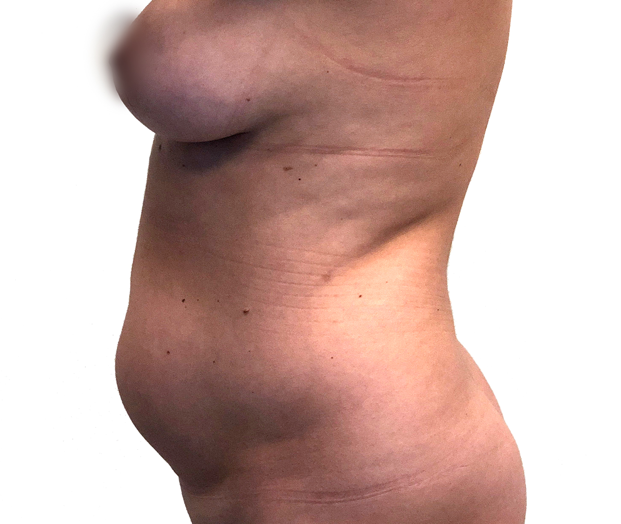 Liposuction Body 8