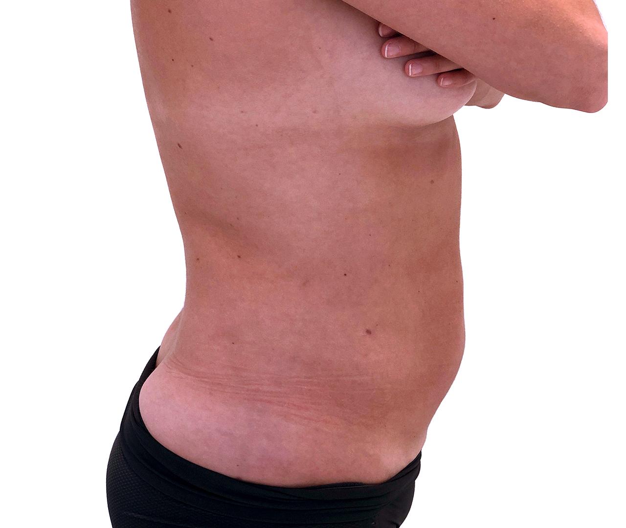 Liposuction Body 8