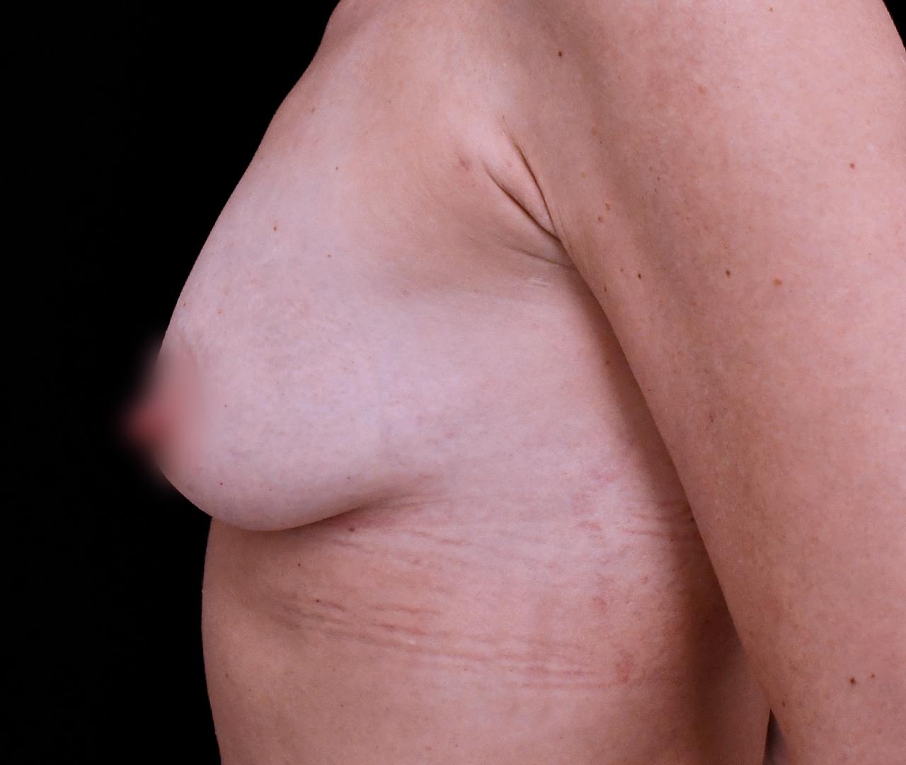 Breast Enhancement 2