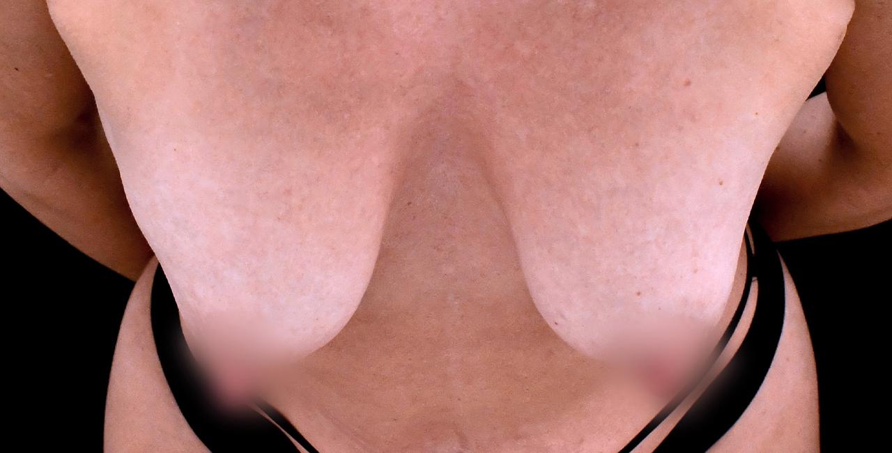 Breast Enhancement 3