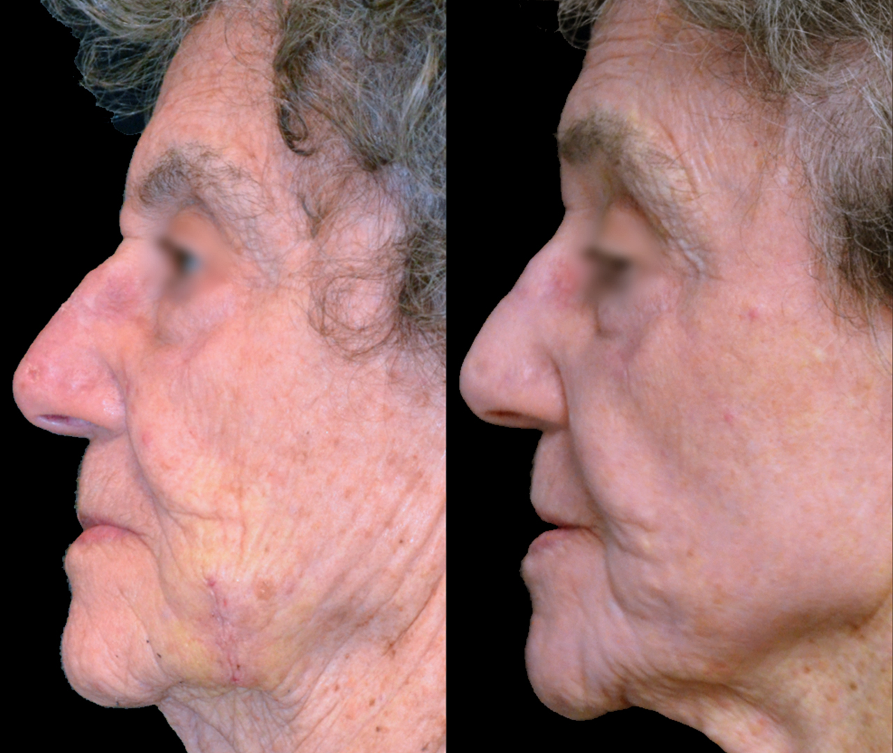 Laser Skin Resurfacing TotalFX