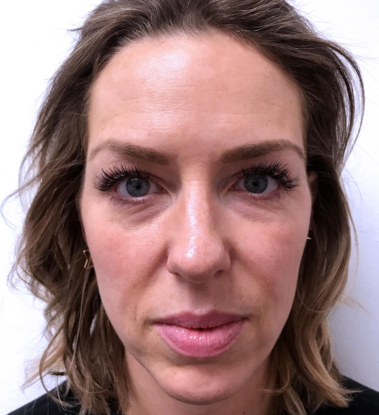 Face Contouring 3