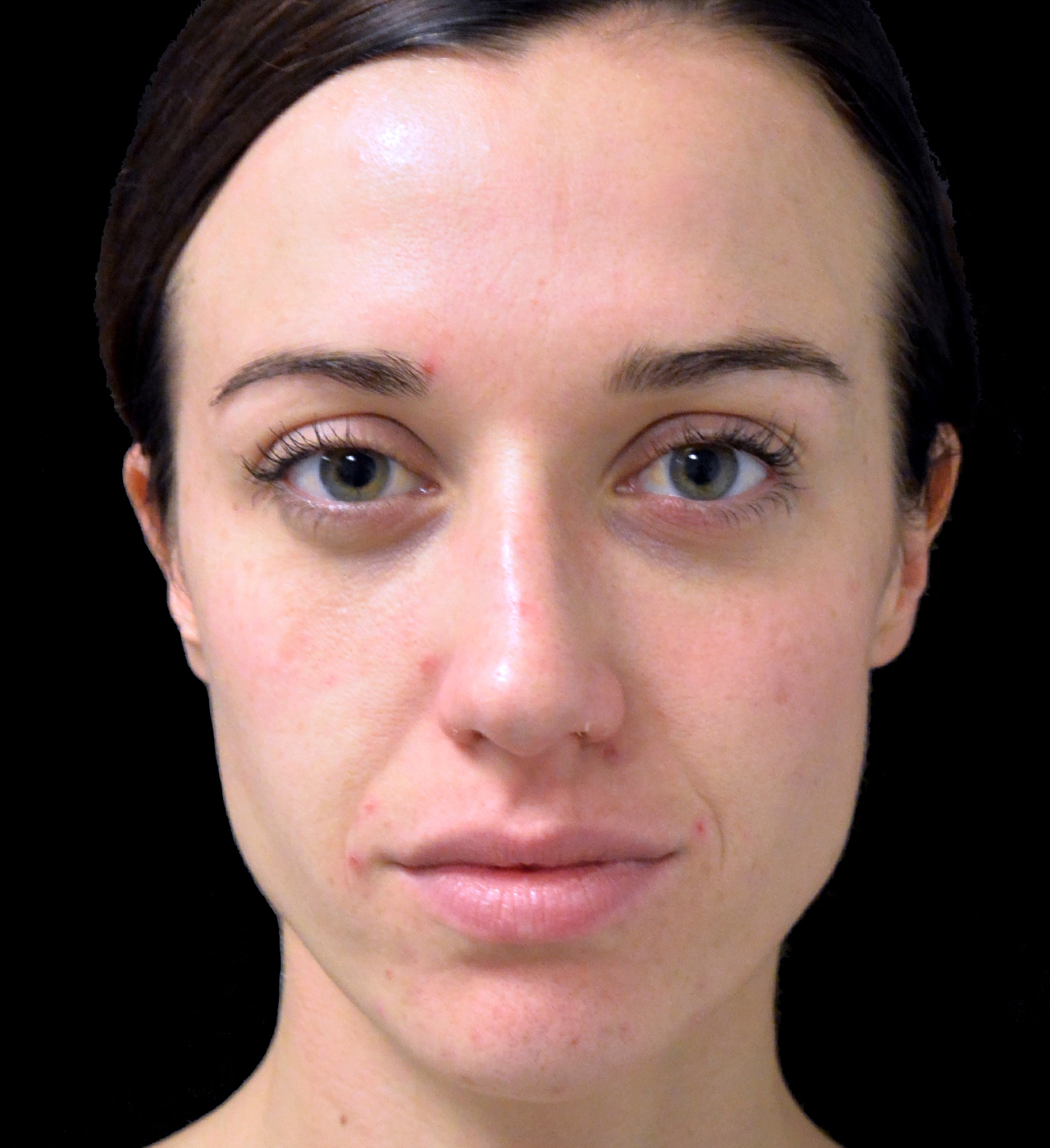 Face Contouring 4