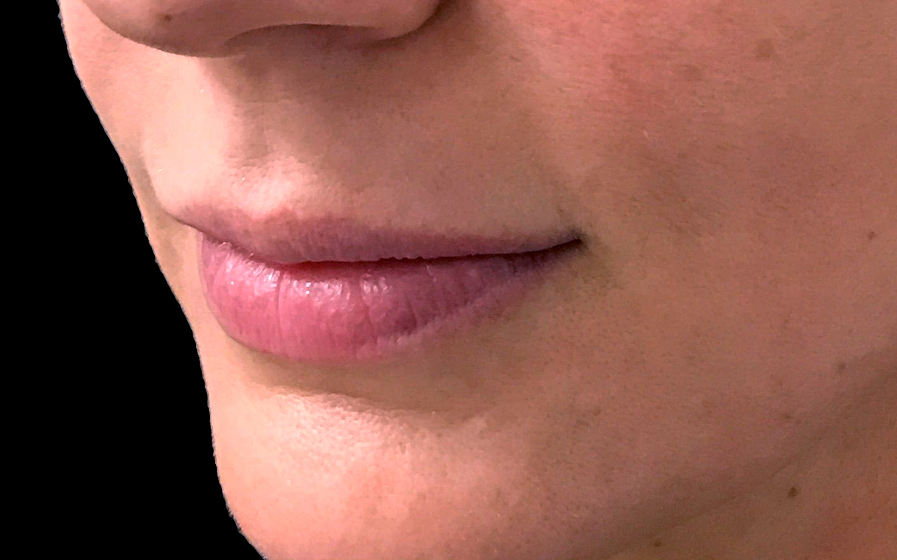 Lip Augmentation 9