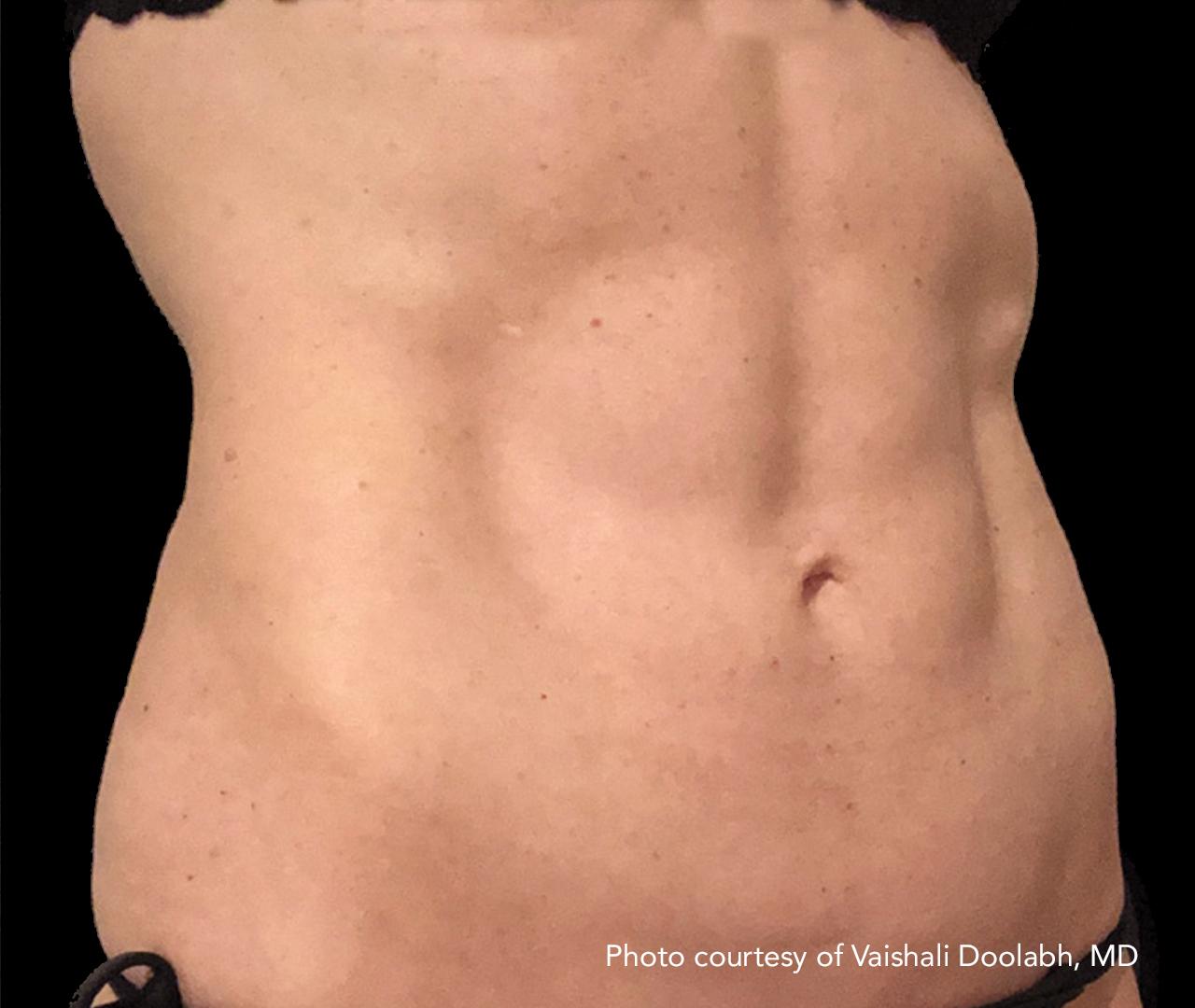 Subdermal Skin Tightening 2