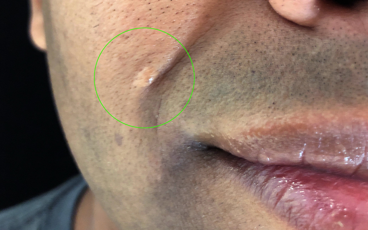Cosmetic Mole Removal 5