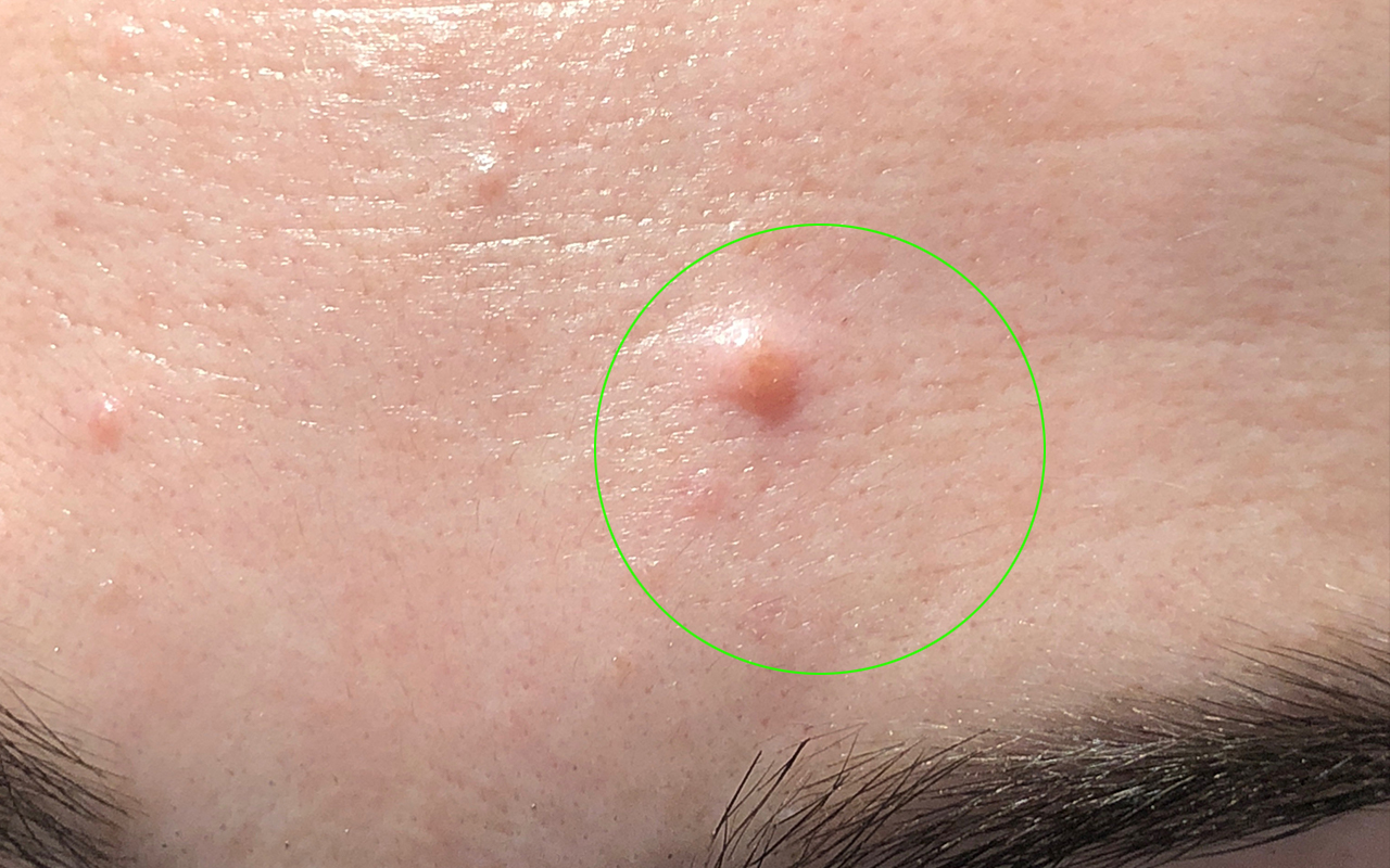 Cosmetic Mole Removal 2