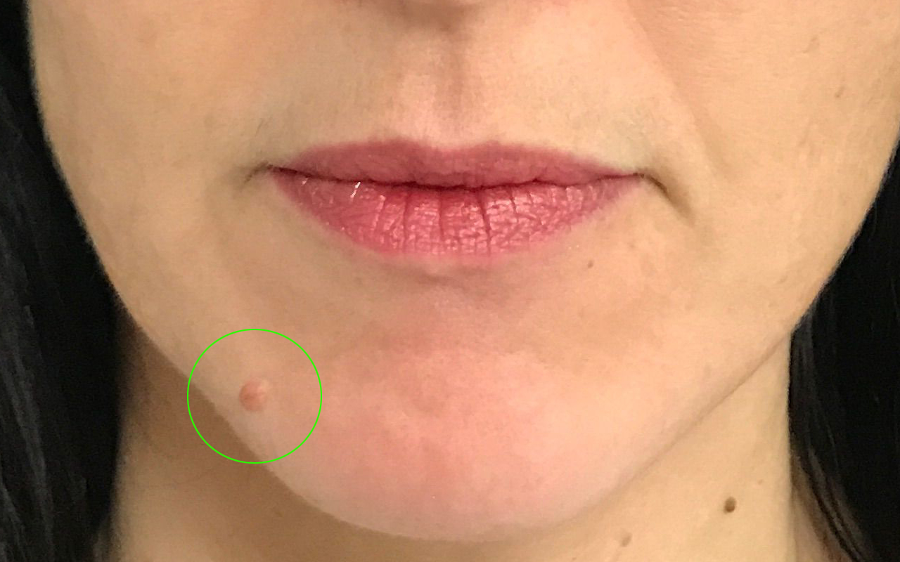 Cosmetic Mole Removal