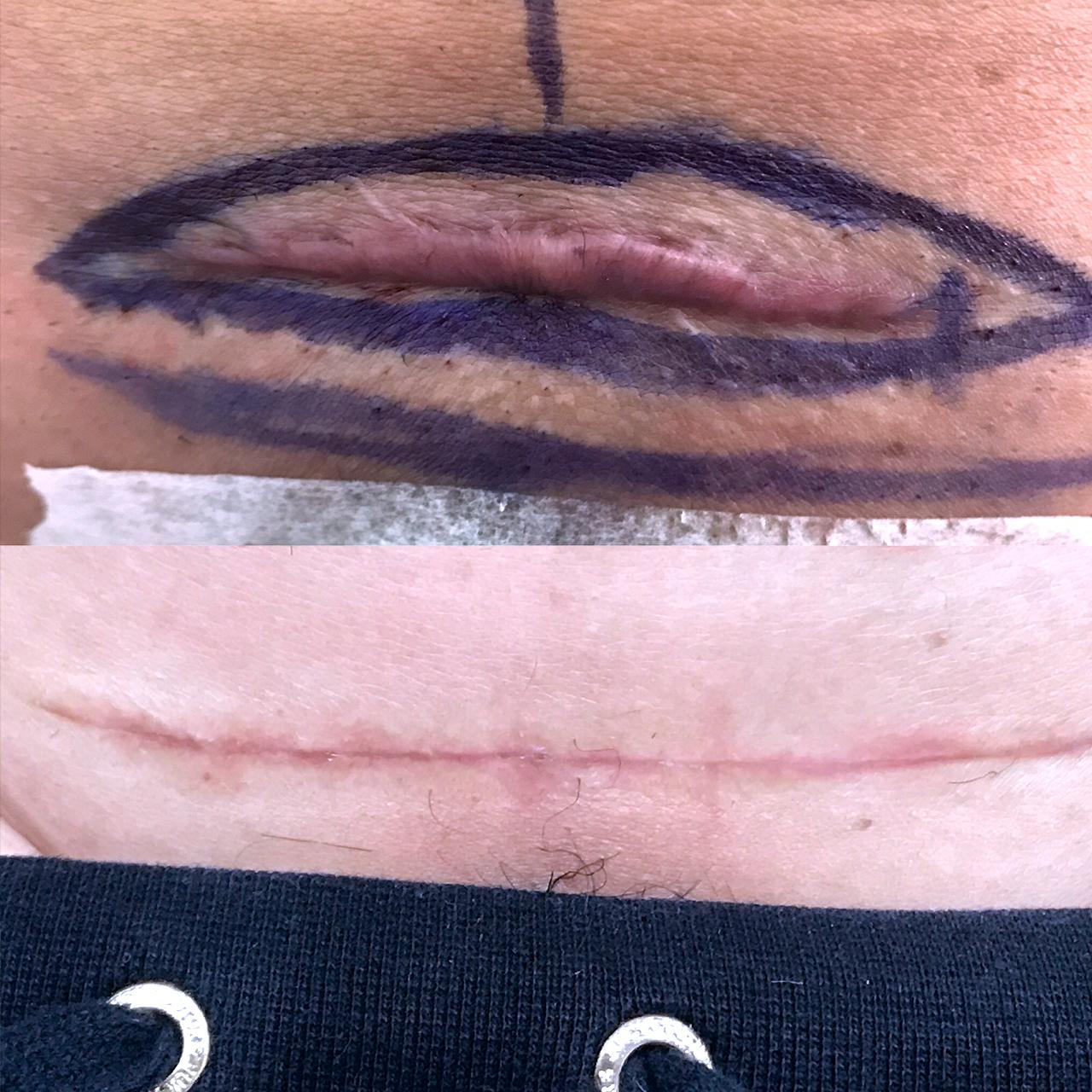 Scar Revision 15