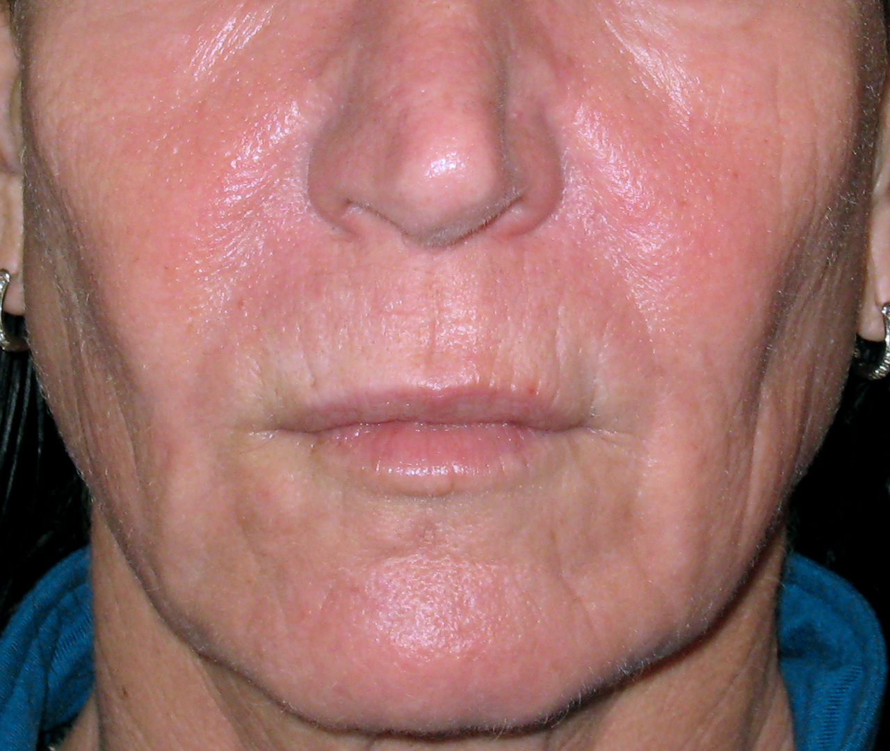Laser Skin Resurfacing TotalFX 2
