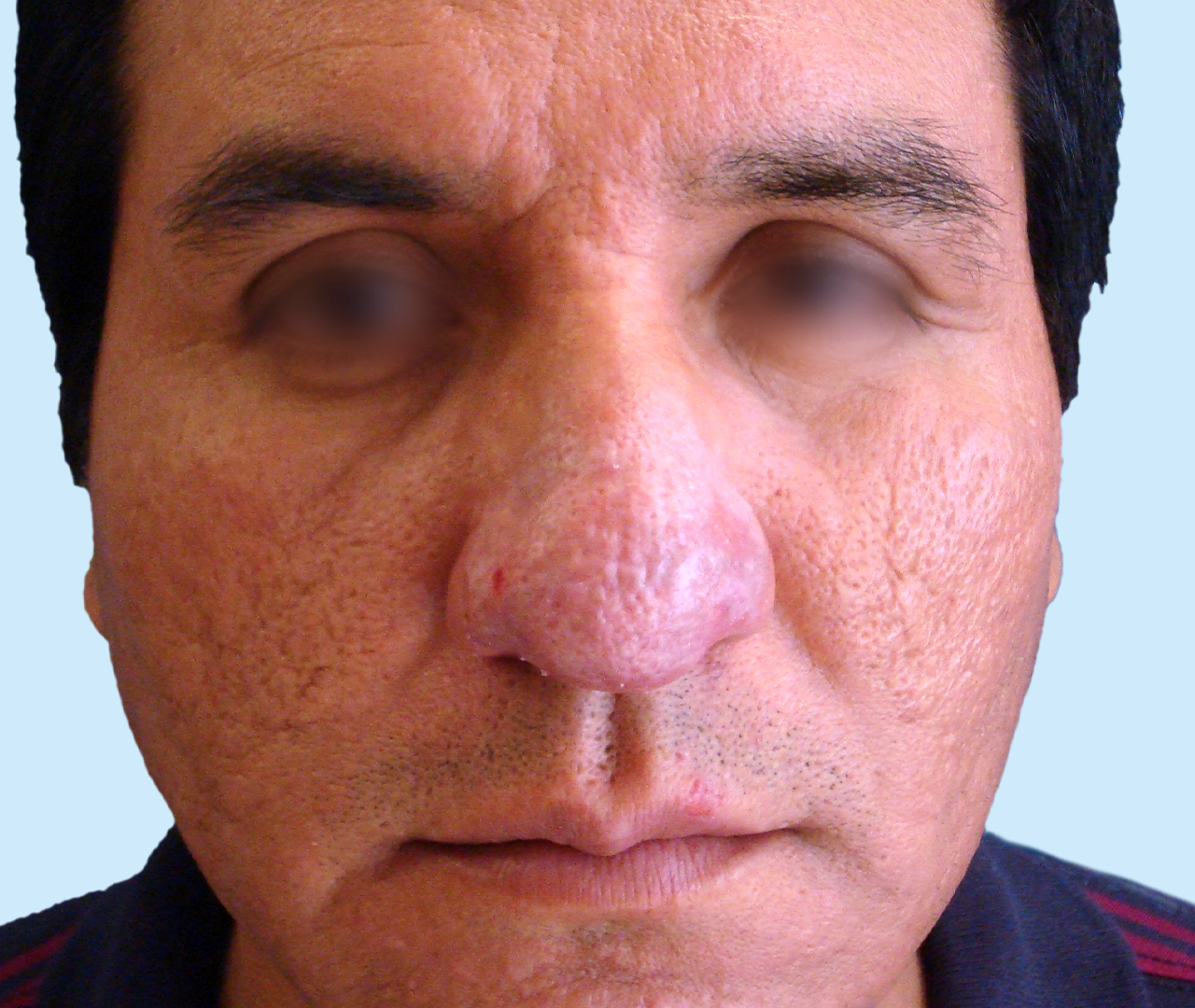 Laser Skin Resurfacing TotalFX 5