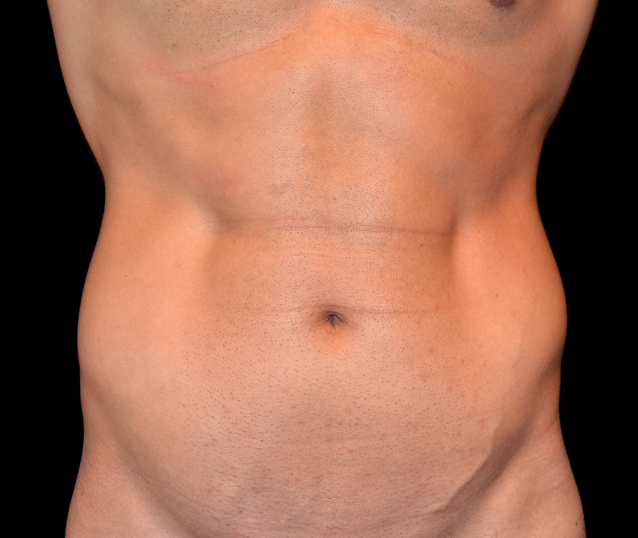 Liposuction Body 6