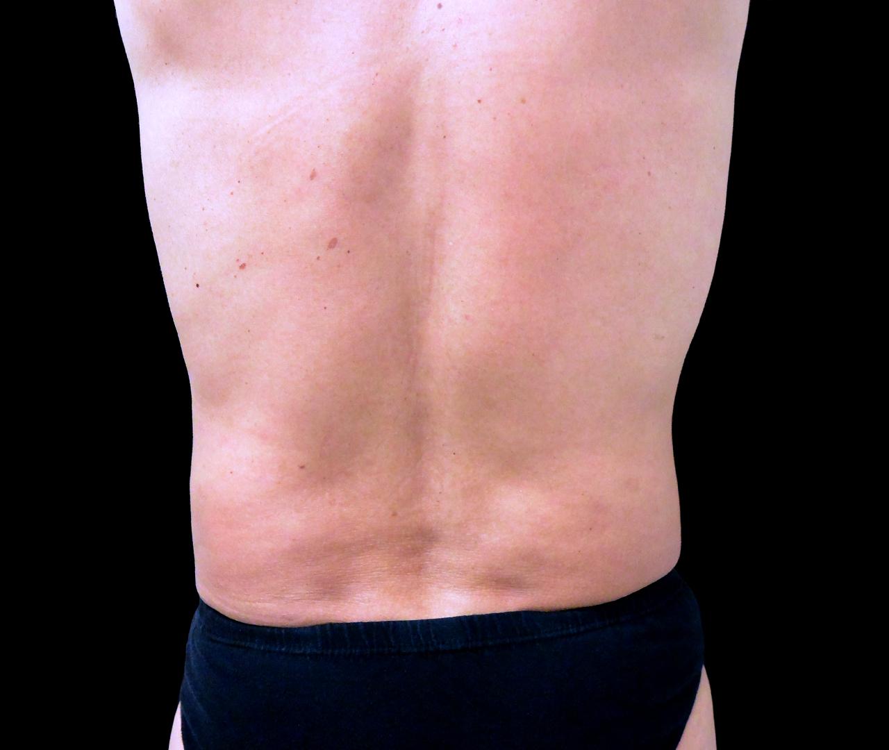 Liposuction Body 9