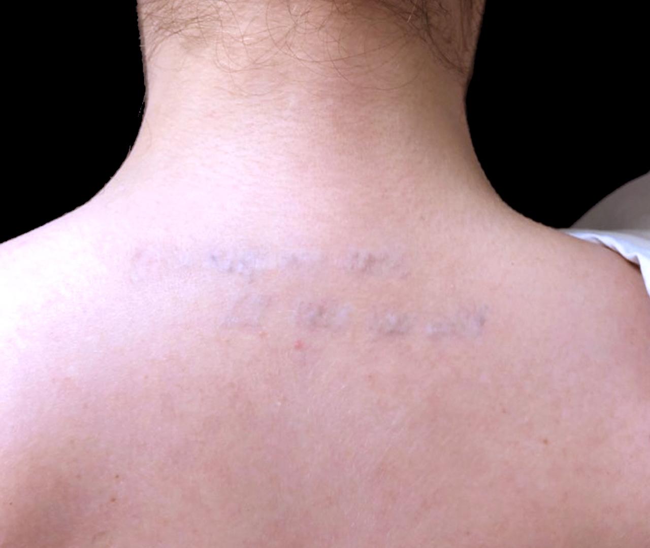 Tattoo Removal 2
