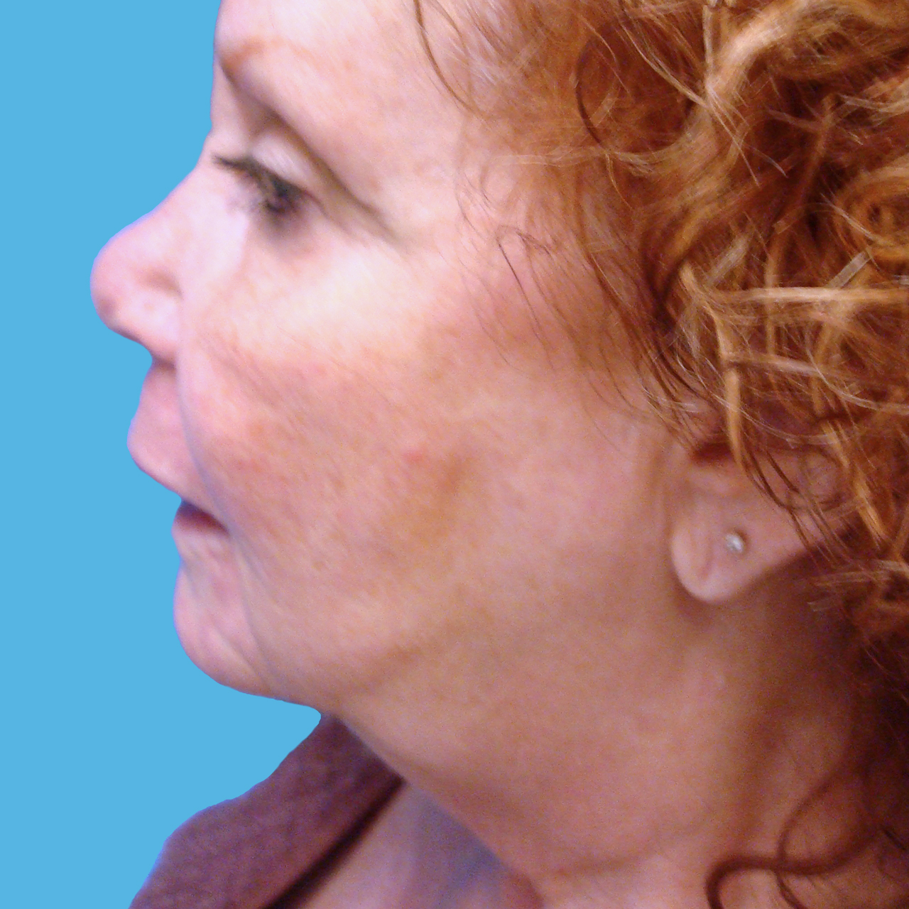 Surgical Face and Neck Lift