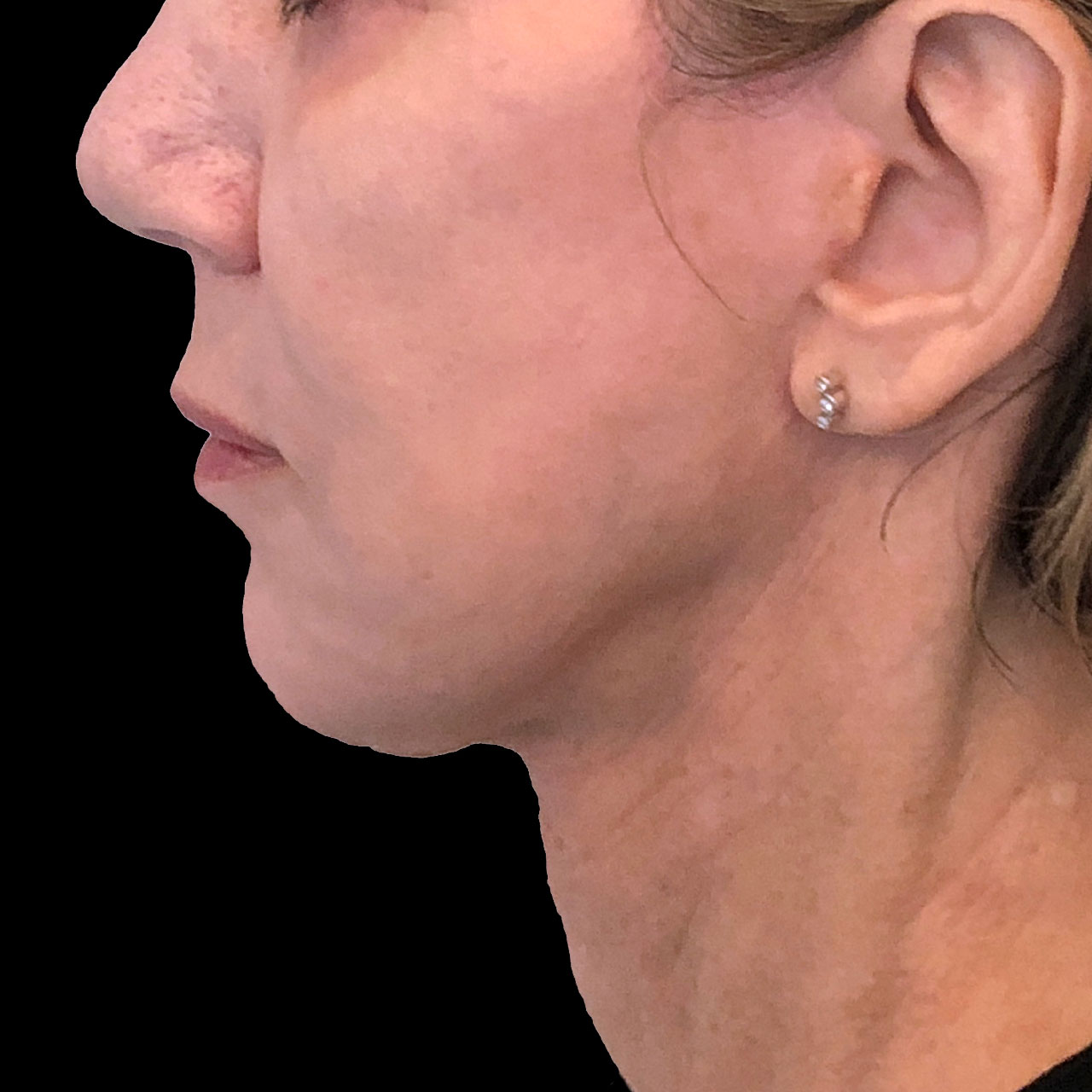 Surgical Face and Neck Lift 2