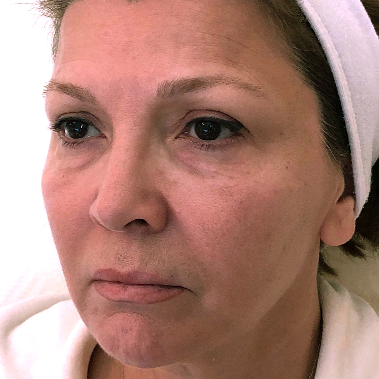 Non-Surgical Face and Neck Lift