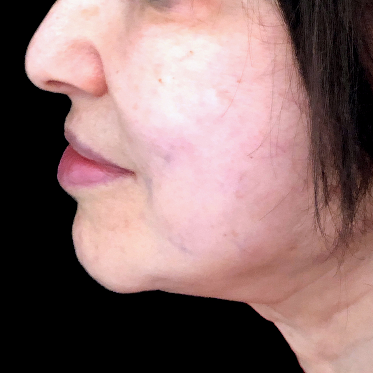 Non-Surgical Face and Neck Lift 2