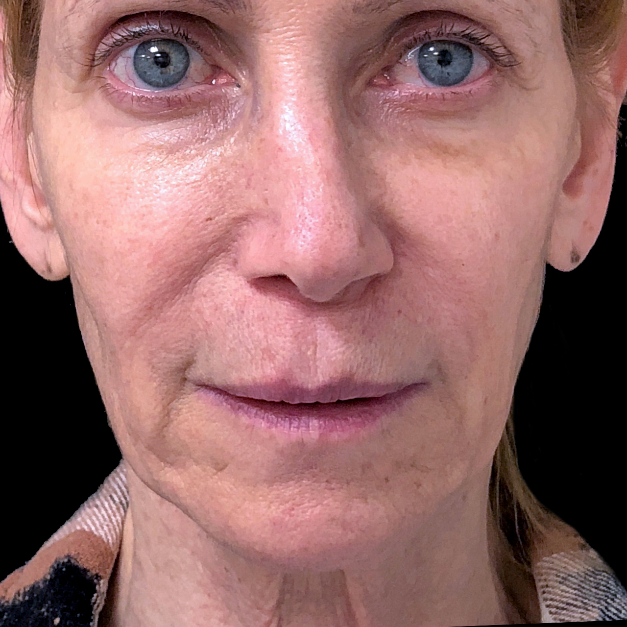 Non-Surgical Face and Neck Lift 3