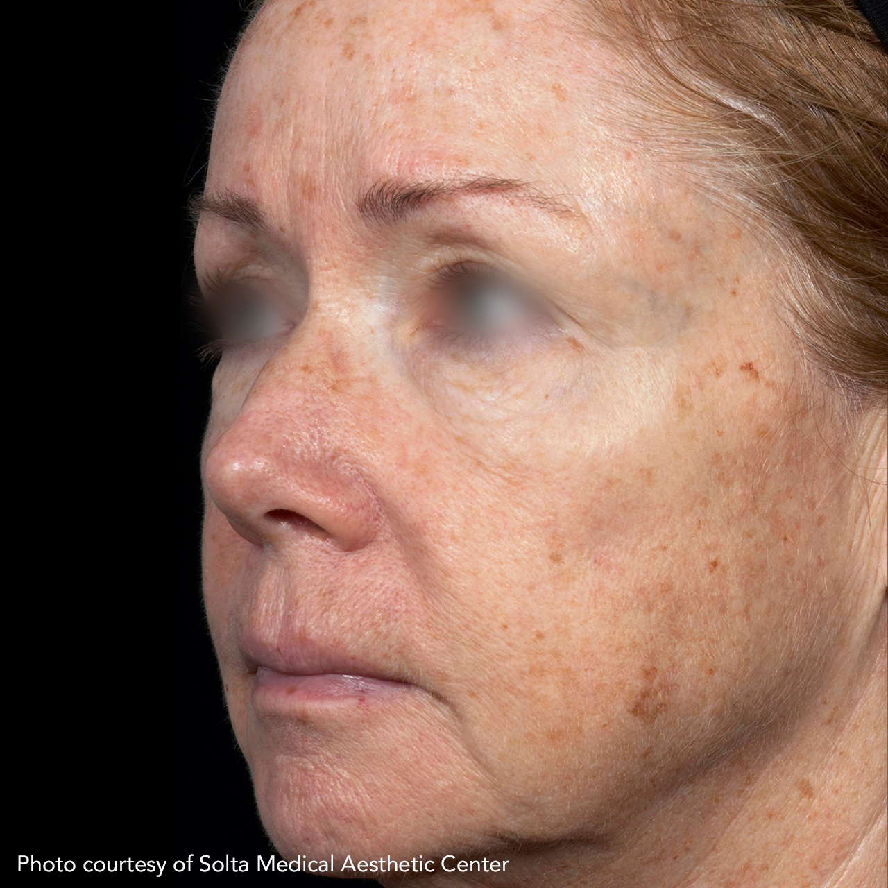 Laser Skin Resurfacing Fraxel