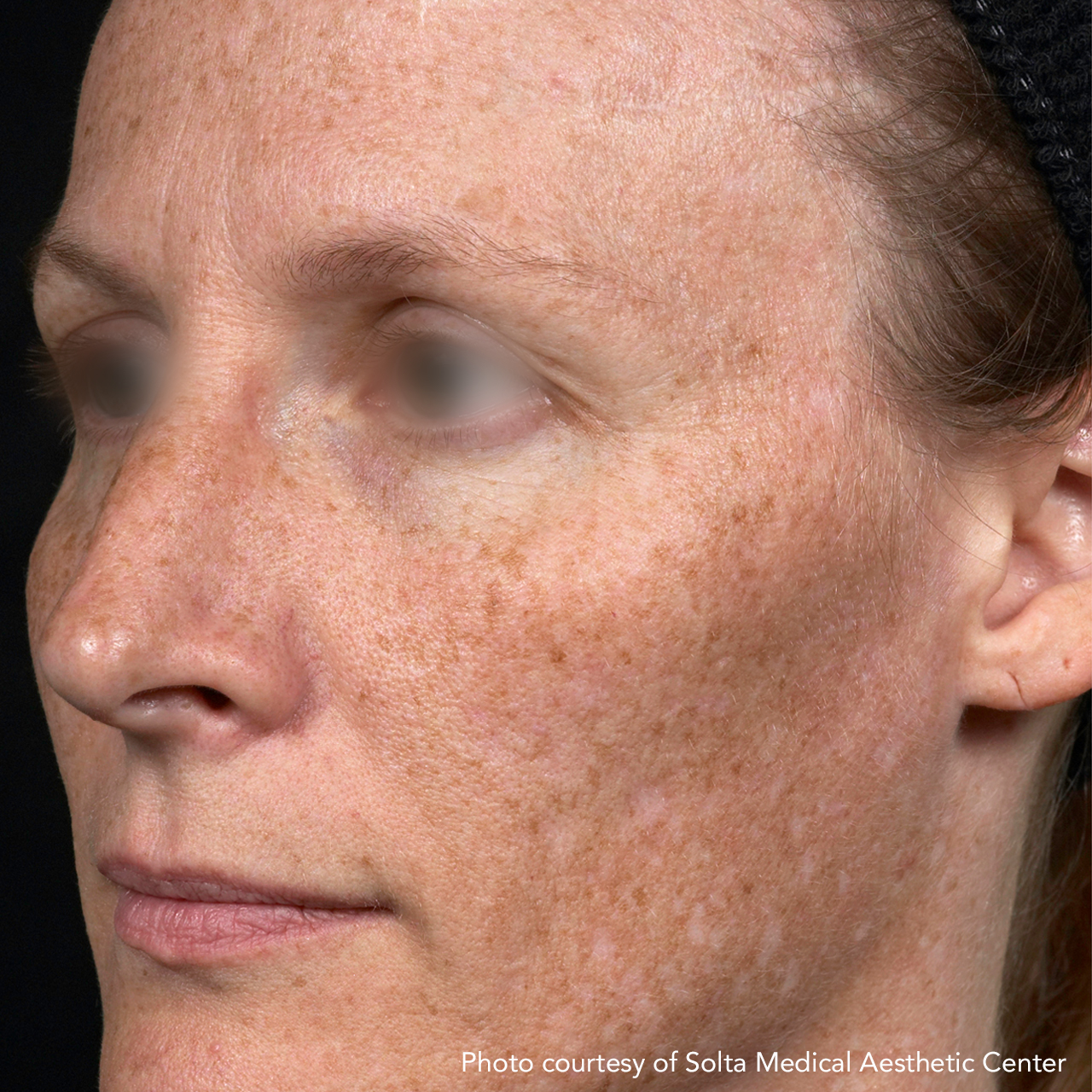 Laser Skin Resurfacing Fraxel 6