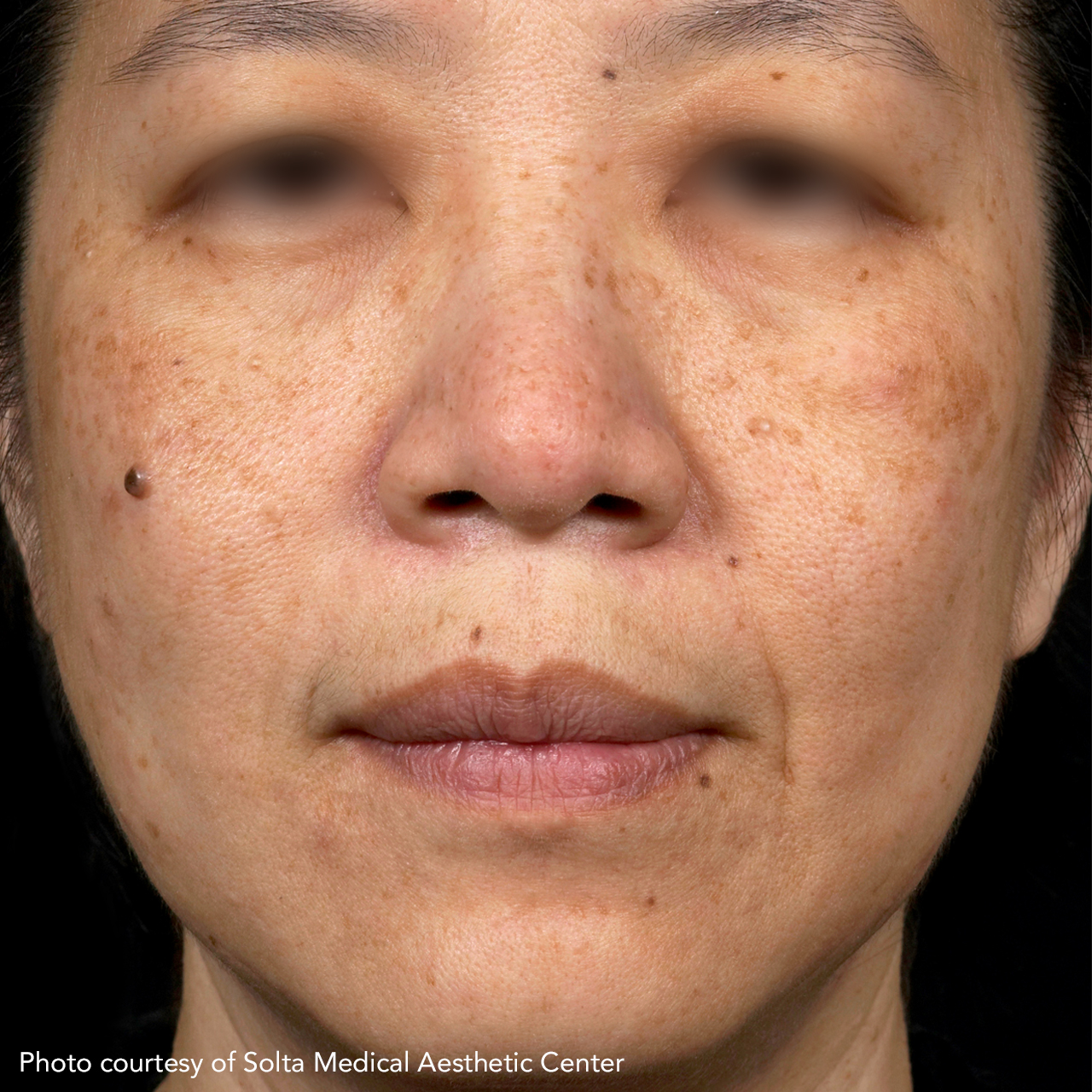 Laser Skin Resurfacing Fraxel 10