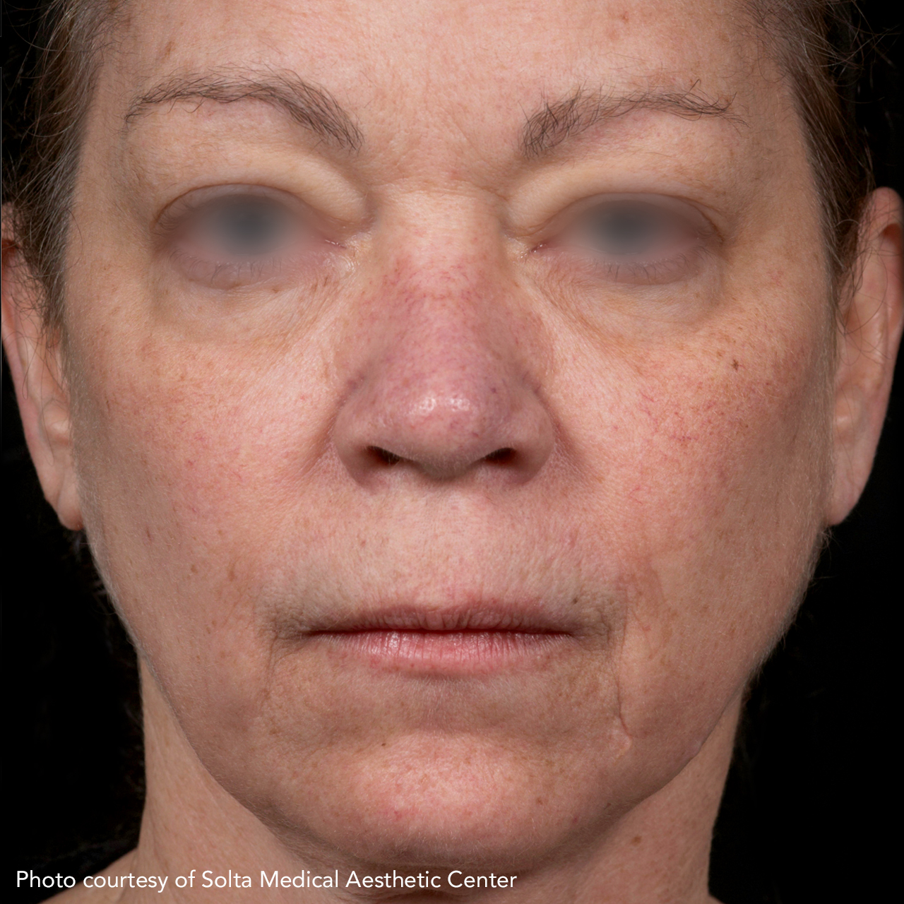 Laser Skin Resurfacing Fraxel 12