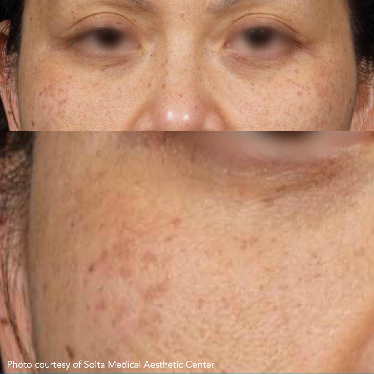 Laser Skin Resurfacing Clear & Brilliant 2