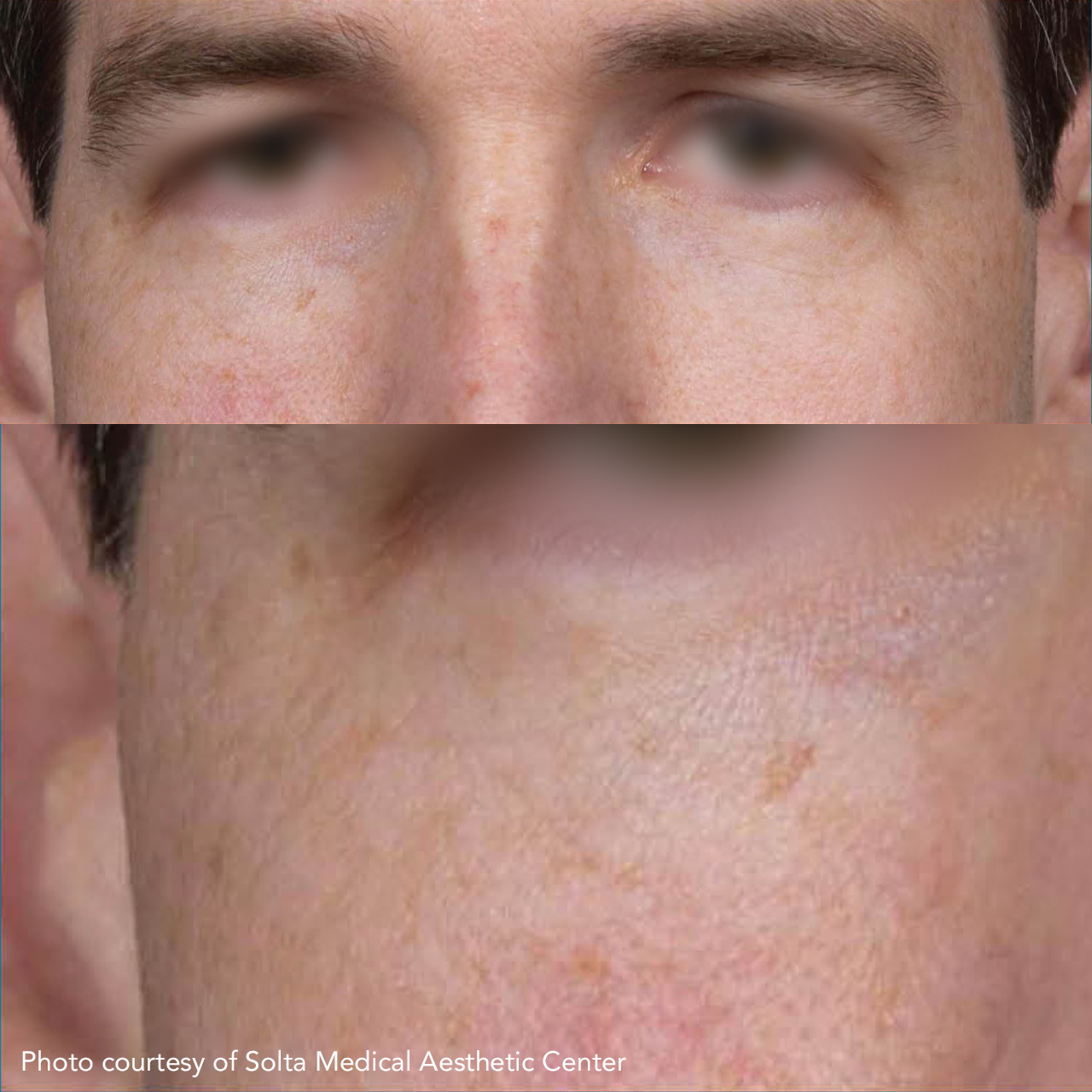 Laser Skin Resurfacing Clear & Brilliant 3