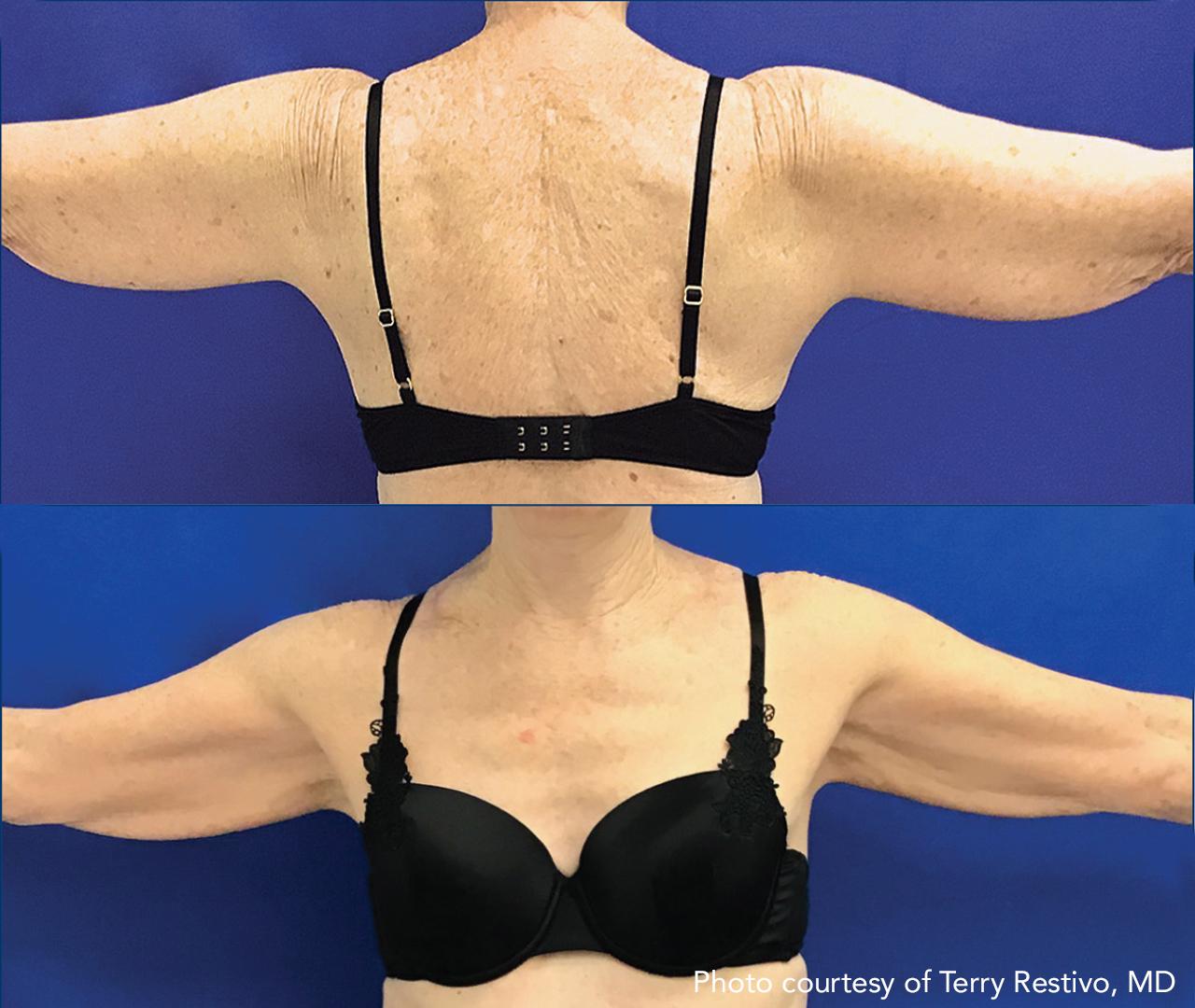 Subdermal Skin Tightening 7