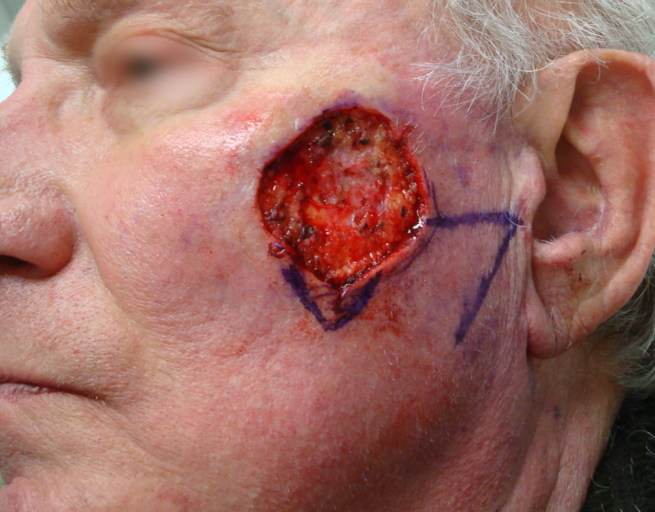 Mohs Surgery Cheek 3